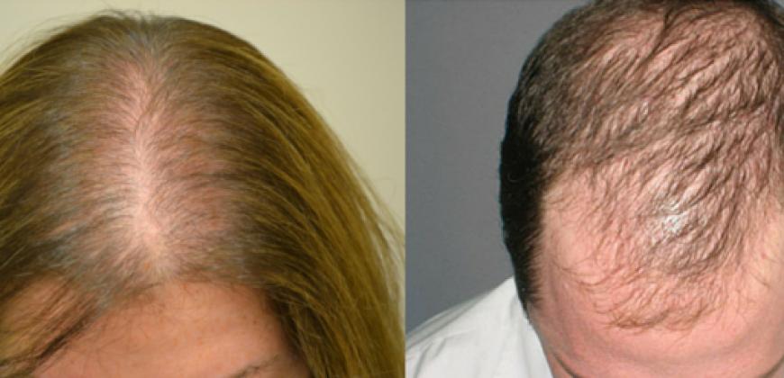 Androgenetik Alopesi (Erkek tipi saç dökülmesi)