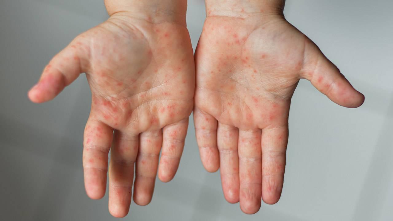 El ayak ağız hastalığının tedavisi