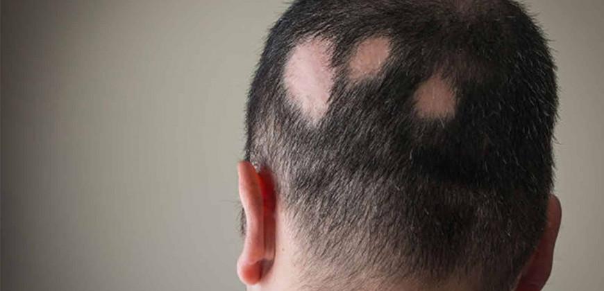 Saçkıran (Alopesi Areata) Hastalığı