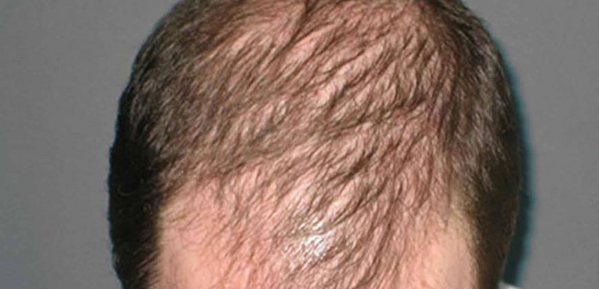 Saç Dökülmesi Sebepleri ve Tedavi yöntemleri