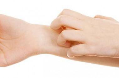 Kaşıntı, kaşıntılı deri nasıl rahatlatılır?