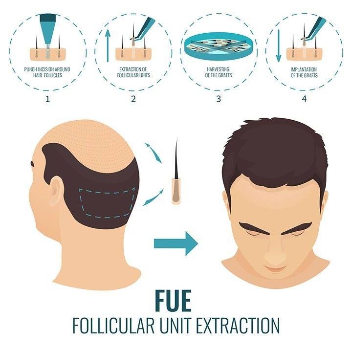 saç ekimi operasyon süresi
