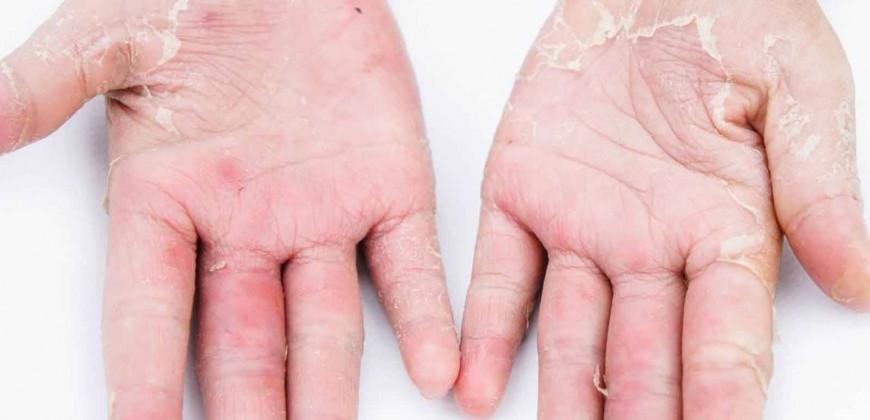 Kontakt Dermatit (Egzama)