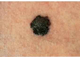melanom nedir