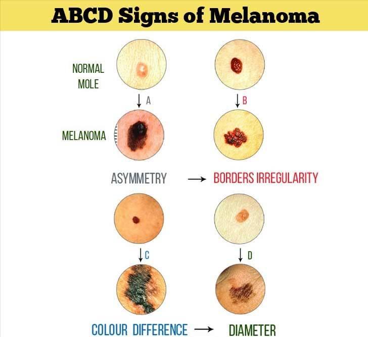 melanom semptomları