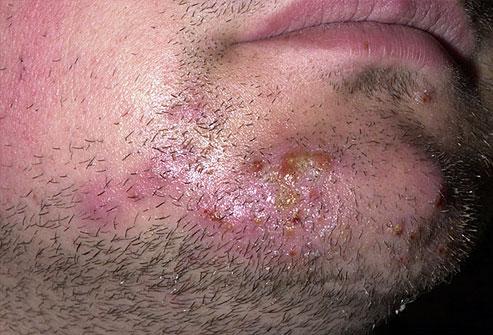 Psödofolikülitis barba nasıl tedavi edilir