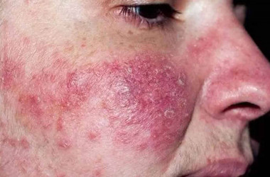 Rozasea (Gül Hastalığı, Yüz Kızarıklığı)