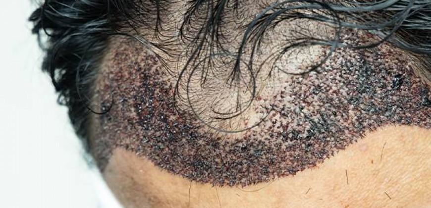 Saç Ekimi (Saç transplantasyonu)