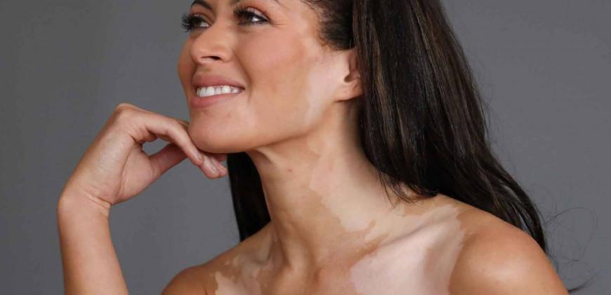 Vitiligo (Ala hastalığı, Alaca Hastalığı)