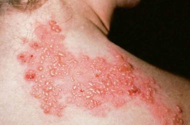 Zona Hastalığı (Gece Yanığı, Kuşak Hastalığı)